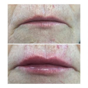 lip rejuvenation