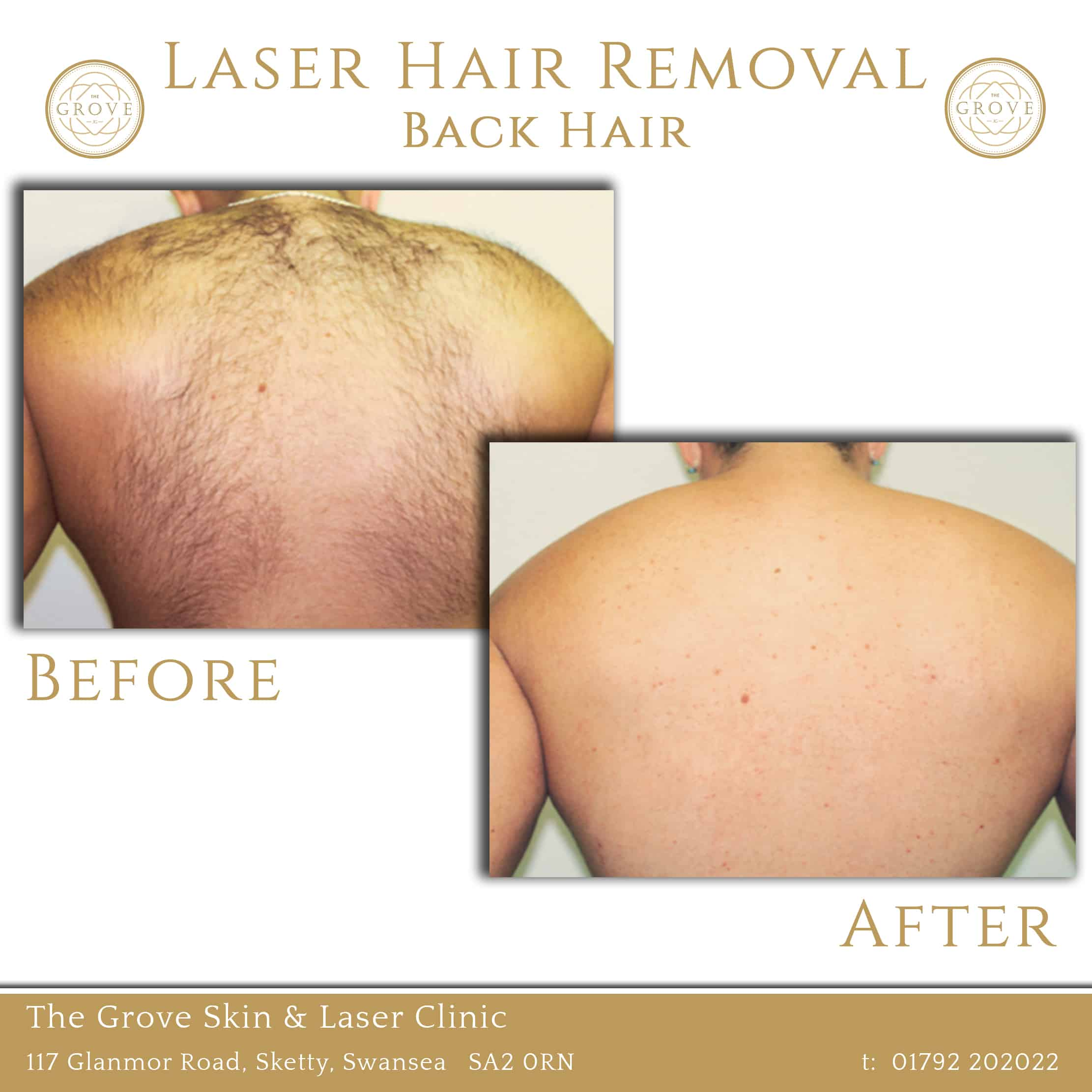Laser Back Hair Removal Before and After