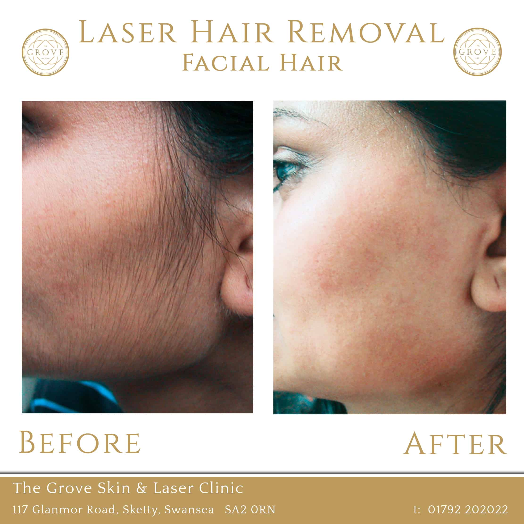 Laser Facial Hair Removal Before and After