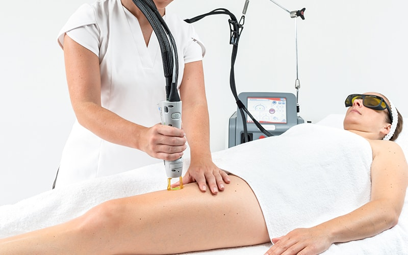 Laser Hair Removal - Swansea - Laser Treatment