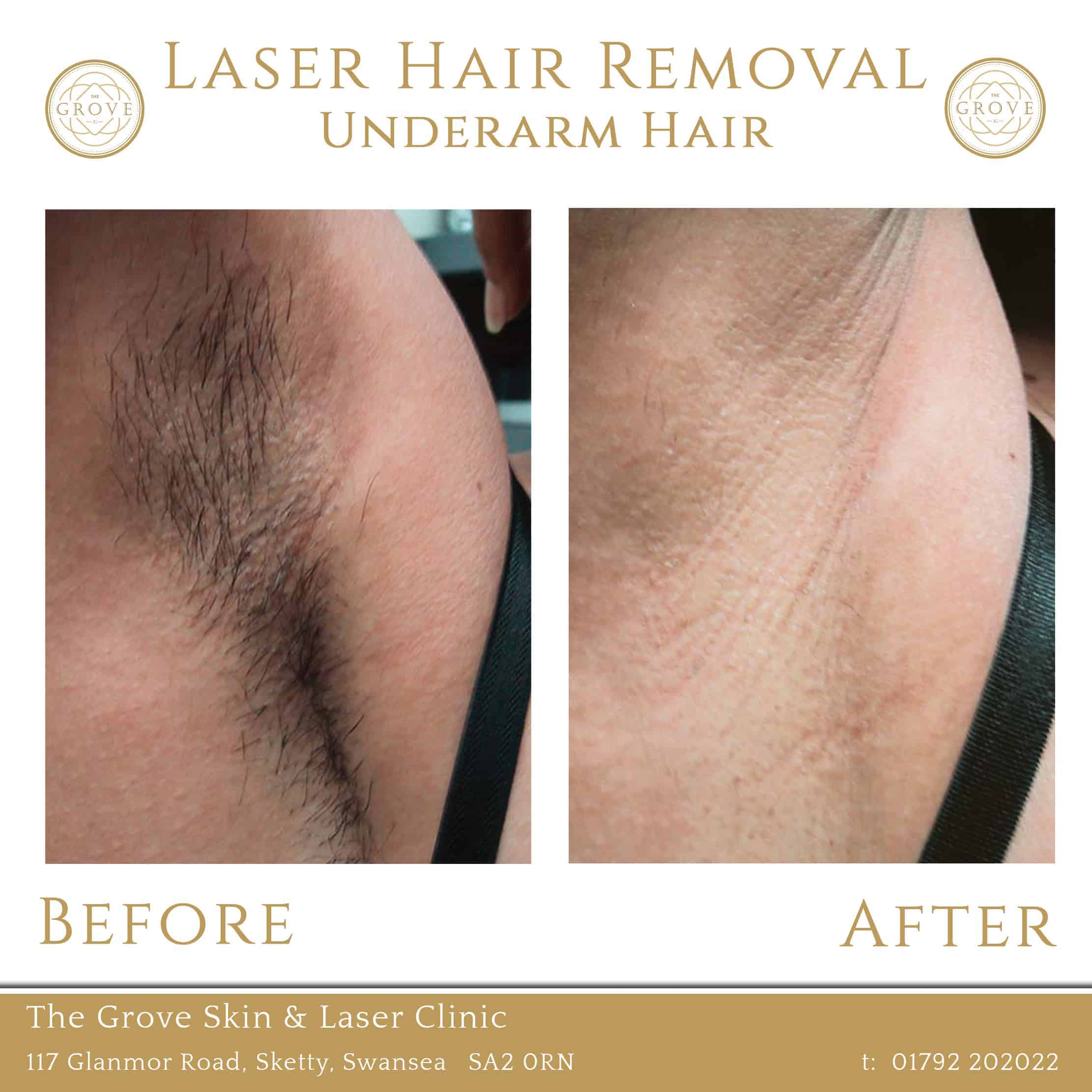 Laser Underarm Hair Removal Before and After