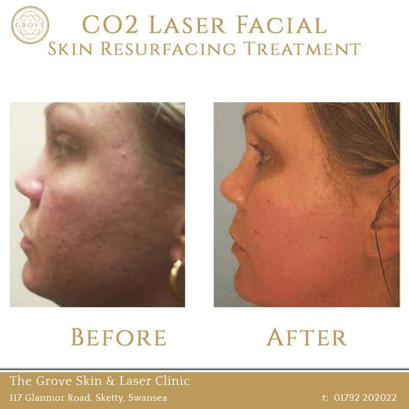 CO2 Laser Facial Skin Resurfacing Treatment Swansea Wales UK Acne Scarring Female 1
