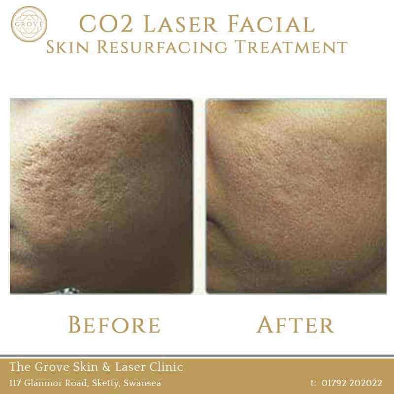 CO2 Laser Facial Skin Resurfacing Treatment Swansea Wales UK Acne Scarring Female 2