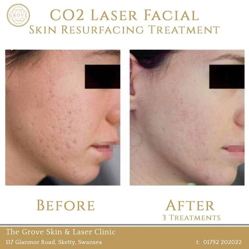 CO2 Laser Facial Skin Resurfacing Treatment Swansea Wales UK Acne Scarring Female