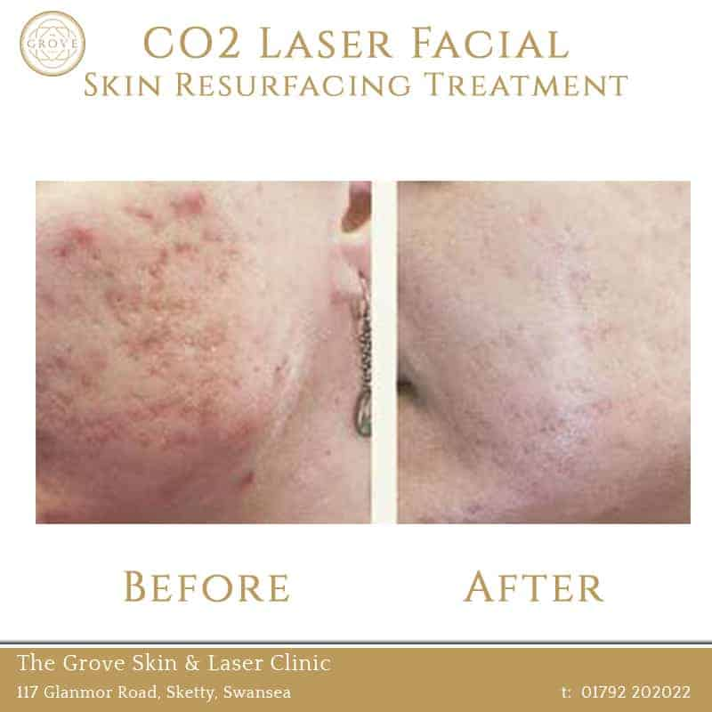 CO2 Laser Facial Skin Resurfacing Treatment Swansea Wales UK Acne Scarring Young Female