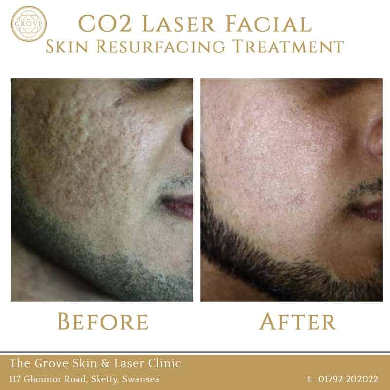 CO2 Laser Facial Skin Resurfacing Treatment Swansea Wales UK Acne Scarring