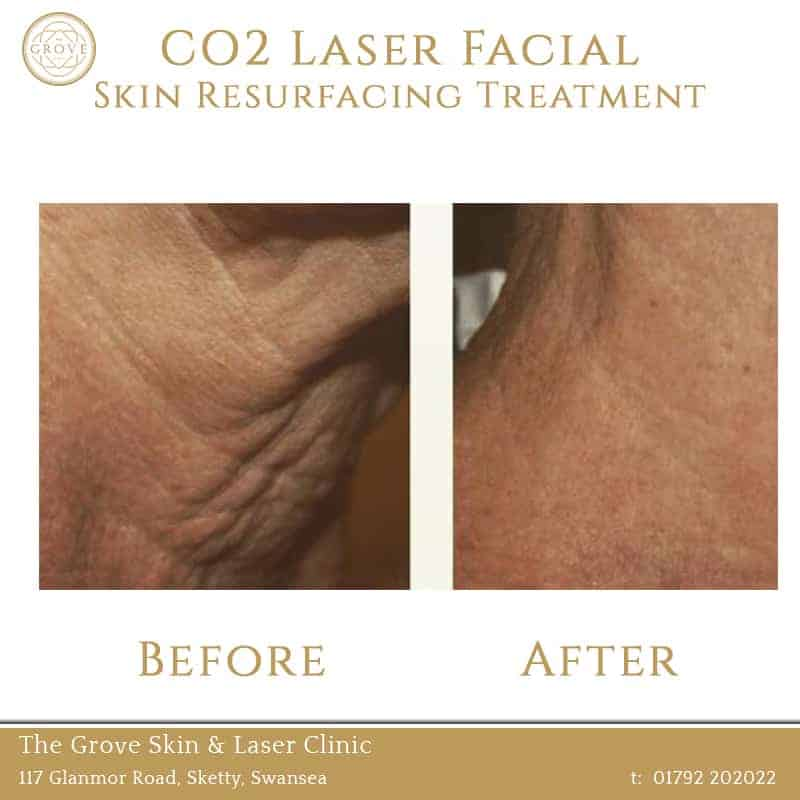 CO2 Laser Facial Skin Resurfacing Treatment Swansea Wales UK Acne Wrinkles Necj