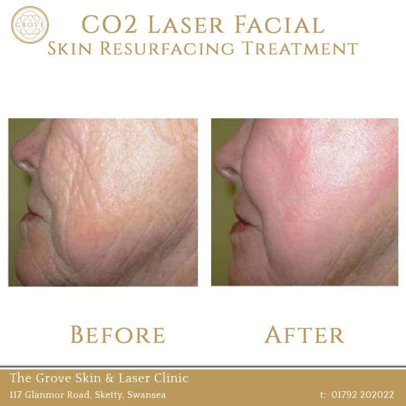 CO2 Laser Facial Skin Resurfacing Treatment Swansea Wales UK Acne Wrinkles Older Lady Cheeks