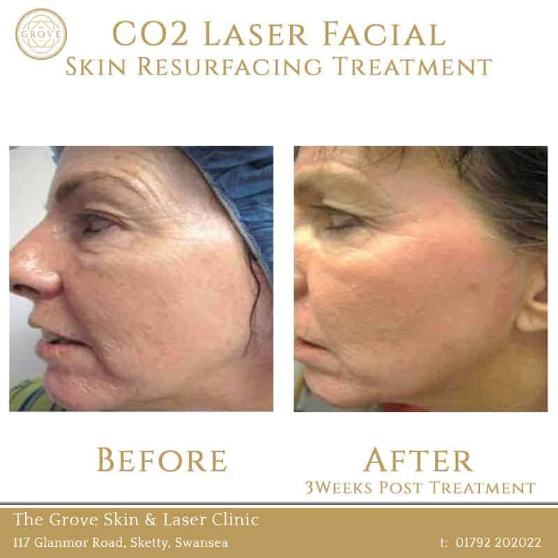CO2 Laser Facial Skin Resurfacing Treatment Swansea Wales UK Acne Wrinkles Woman 40yrs