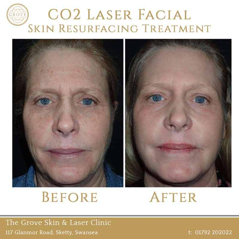 CO2 Laser Facial Skin Resurfacing Treatment Swansea Wales UK Full Face Pigmentation