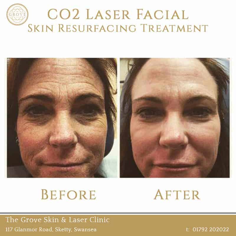 CO2 Laser Facial Skin Resurfacing Treatment Swansea Wales UK Wrinkles Middle Aged Woman