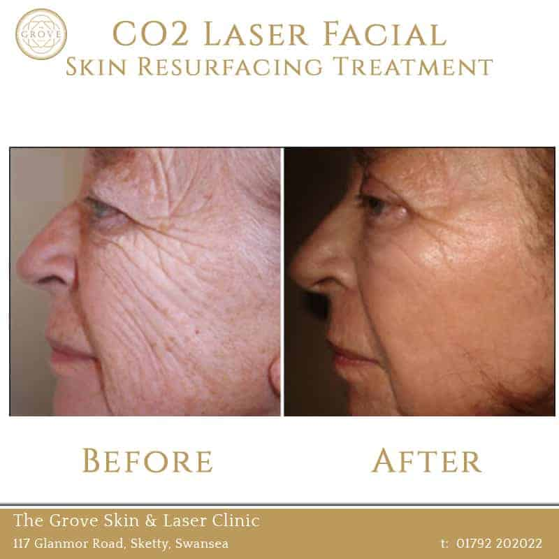 CO2 Laser Facial Skin Resurfacing Treatment Swansea Wales UK Wrinkles Older Lady