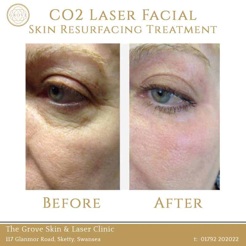 CO2 Laser Facial Skin Resurfacing Treatment Swansea Wales UK Wrinkles Under Eye
