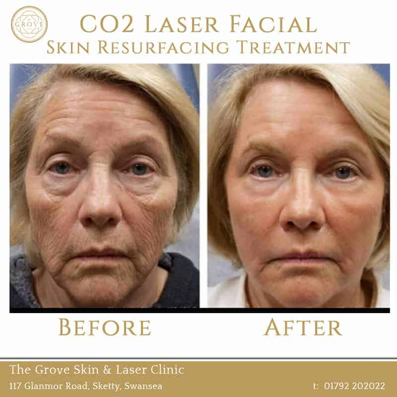 CO2 Laser Facial Skin Resurfacing Treatment Swansea Wales UK Wrinkles