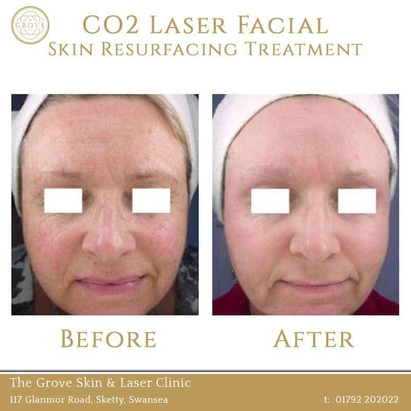 CO2 Laser Facial Skin Resurfacing Treatment Swansea Wales UK